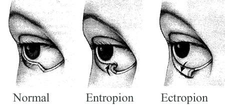 Εκτρόπιο και Εντρόπιο Βλεφάρων - Αντιμετώπιση|Θεραπεία - Θεσσαλονίκη
